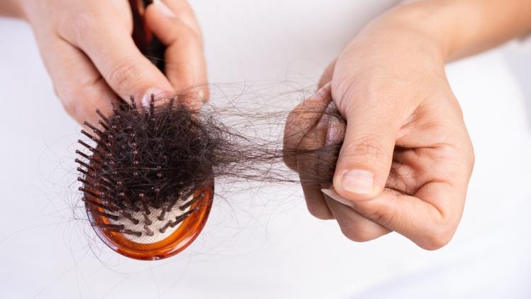 A distinction between premature haircuts and traditional hair loss