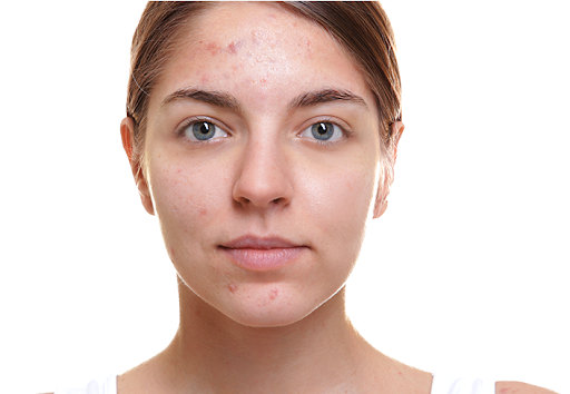 Truths About Natural Treatment of Hormonal Acne