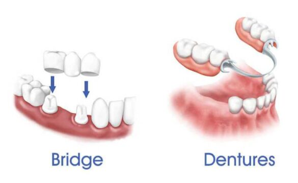 REMOVABLE PARTIAL DENTURE: IMPORTANT THINGS TO KNOW 1