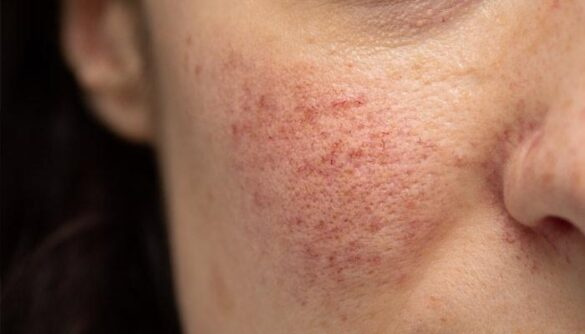 How to Reduce the Symptoms of Rosacea